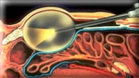 Эндоскопическая урология и андрология - Урологическое отделение профессора Гёпеля - Дюссельдорф - Германия