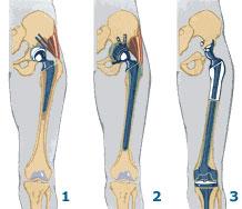 Повторное протезирование тазобедренного сустава