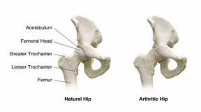 Повреждение тазобедренного сустава при коксартрозе