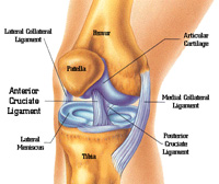Женский коленный эндопротез