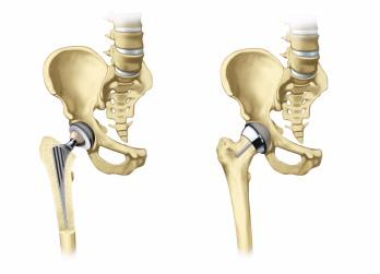 Установленный эндопротез тазобедренного сустава
