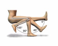 Амплитуда движений после эндопротезирования коленного сустава