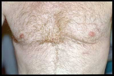 СЕРДЕЧНО-СОСУДИСТАЯ ХИРУРГИЯ в МОСКВЕ - После операции миниинвазивного аортокоронарного шунтирования
