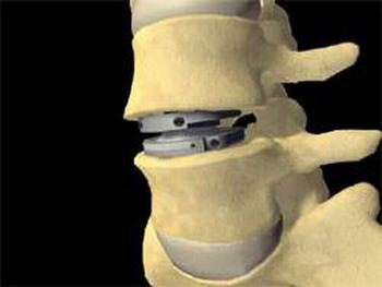 Имлантация титанового протеза межпозвоночного диска
