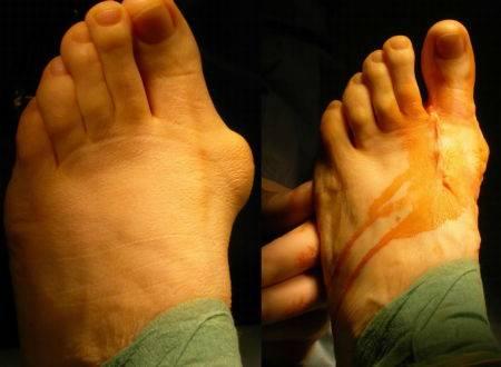 После операции вальгусной деформации первого пальца стопы